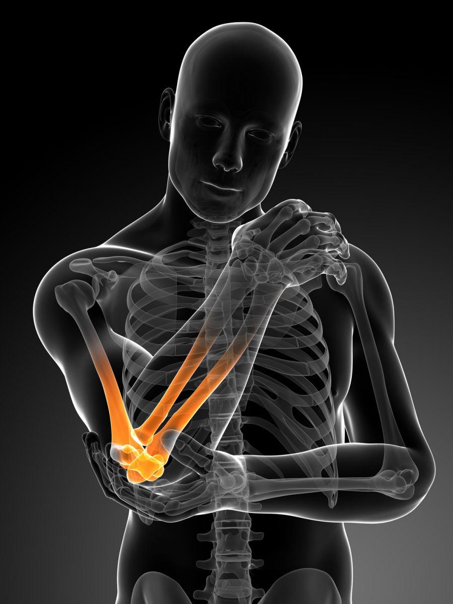Relieve Elbow Pain
