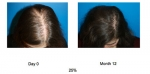 ACell + PRP Hair Regrowth Therapy - NYC