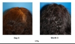ACell + PRP Hair ReGrowth Therapy