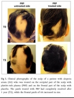 Natural Hair Treatment - ACell + PRP