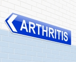 Reduce Arthritis Pain - Stem Cell Injection