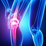 Repair ACL Non-Surgically (Stem Cell And PRP)