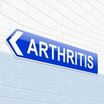 Stem Cell Injection, PRP Injection -Arthritis