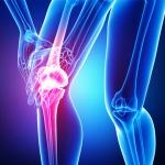 Stem Cell Repair For Knee Injuries - ACL, MCL, LCL, Arthritis